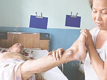 Dấu hiệu nhận biết vết lở loét ở người già và cách điều trị