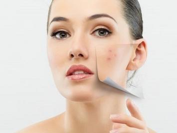 Cách xử lý tình trạng da trị sẹo rỗ bị sưng rát