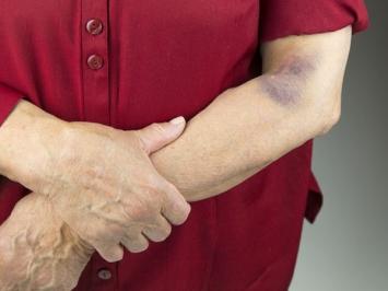 Vết bầm tím là gì? Cách xóa vết bầm tím trên cơ thể nhanh, an toàn, chuẩn theo lời khuyên chuyên gia