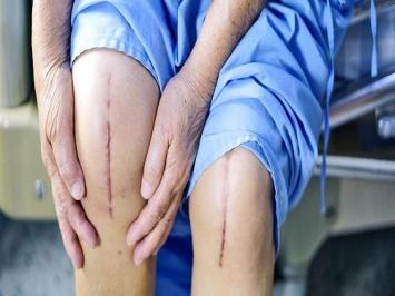 Mọi thứ bạn cần biết về viêm sưng sau phẫu thuật